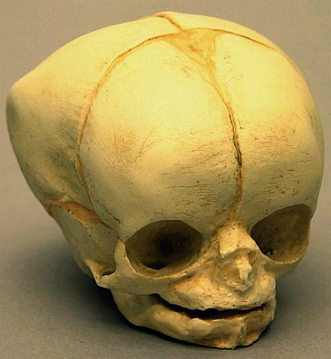 Human Skull Homo Sapiens Cranium Golden